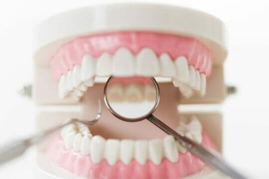 wisdom-tooth_03