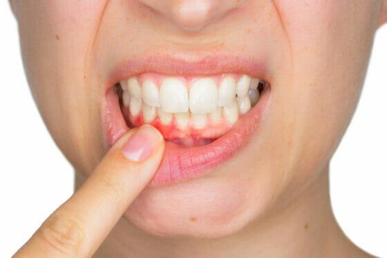 dental_calculus_01