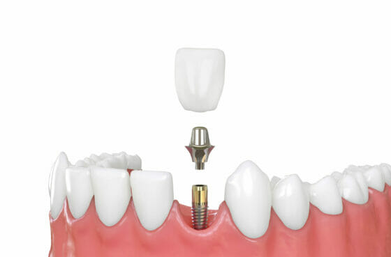 tooth_extraction_02
